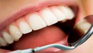 Photo of إزالة رواسب الأسنان بـ5 دقائق