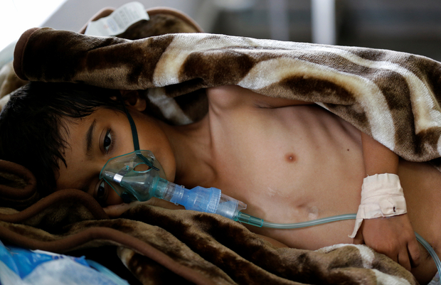 Photo of الكوليرا تغزو اليمن ..300 ألف إصابة خلال 6 أشهر