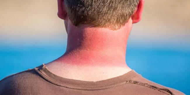 Photo of نصائح لعلاج حروق الشمس في فصل الصيف