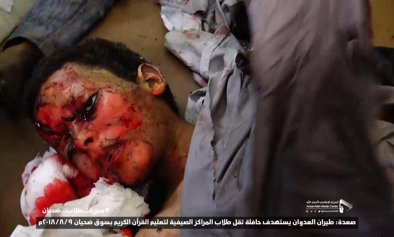 Photo of Syria condemns Saudi regime heinous crime against children in Yemen