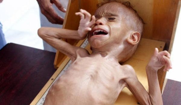 "Photo of الاندبندنت: ضرب ""السعودية"" لإمدادات الغذاء في اليمن أسوأ من اغتيال ""خاشقجي"""