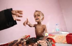 "Photo of بسبب قصف ""أل سعود"".. 14 مليون يمني على حافة المجاعة"