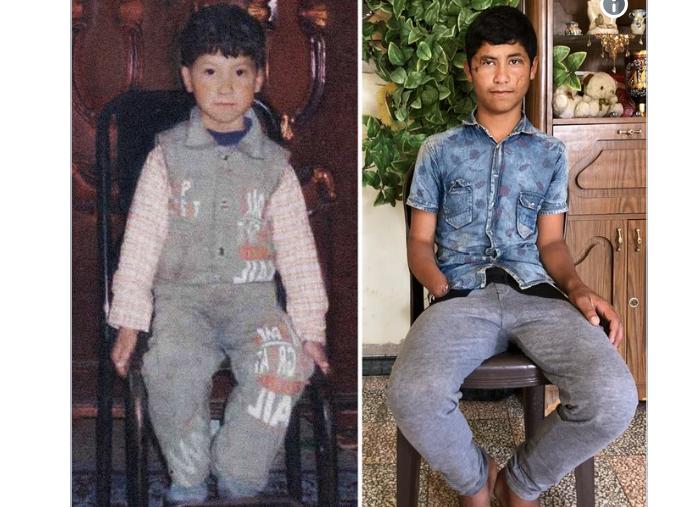 """Photo of طفل سوري يختاره الصليب الأحمر الدولي لـ """"تحدي العشر سنوات"""""""