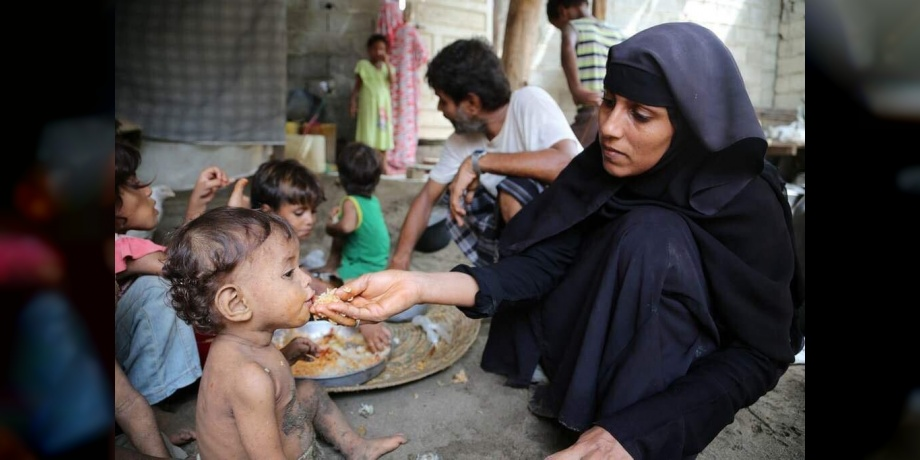 Photo of اليمن.. وفاة طفل كل 10 دقائق..وحياة 20 مليون شخص في خطر
