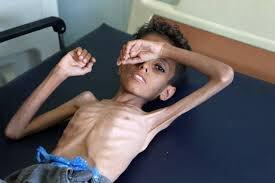 Photo of الحرب على اليمن… فرنسا توافق على صفقة أسلحة للسعودية