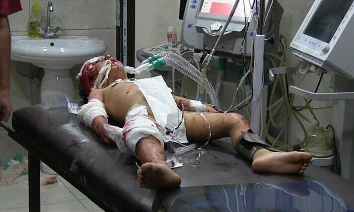 Photo of Two children martyred, 10 civilians injured in terrorist rocket attacks on residential neighborhoods in Aleppo