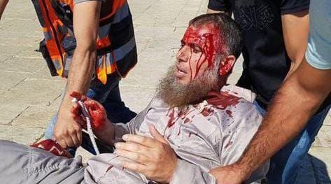 Photo of بالصور – إصابات باعتداء قوات الاحتلال على المصلين في المسجد الأقصى المبارك.