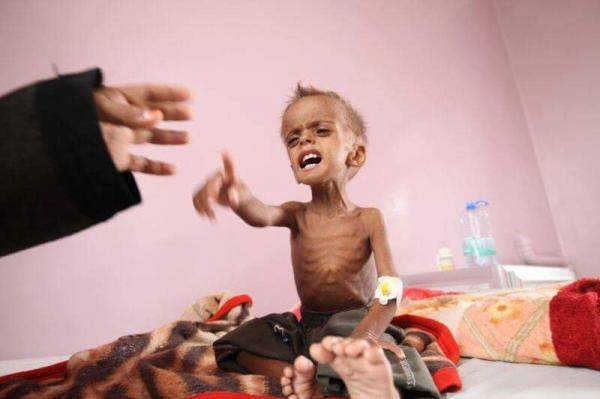 Photo of بالعدوان والحصار.. وفاة 100 ألف طفل يمني سنوياً