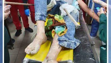 Photo of حادثة إسعافية نادرة في مشفى المواساة بدمشق