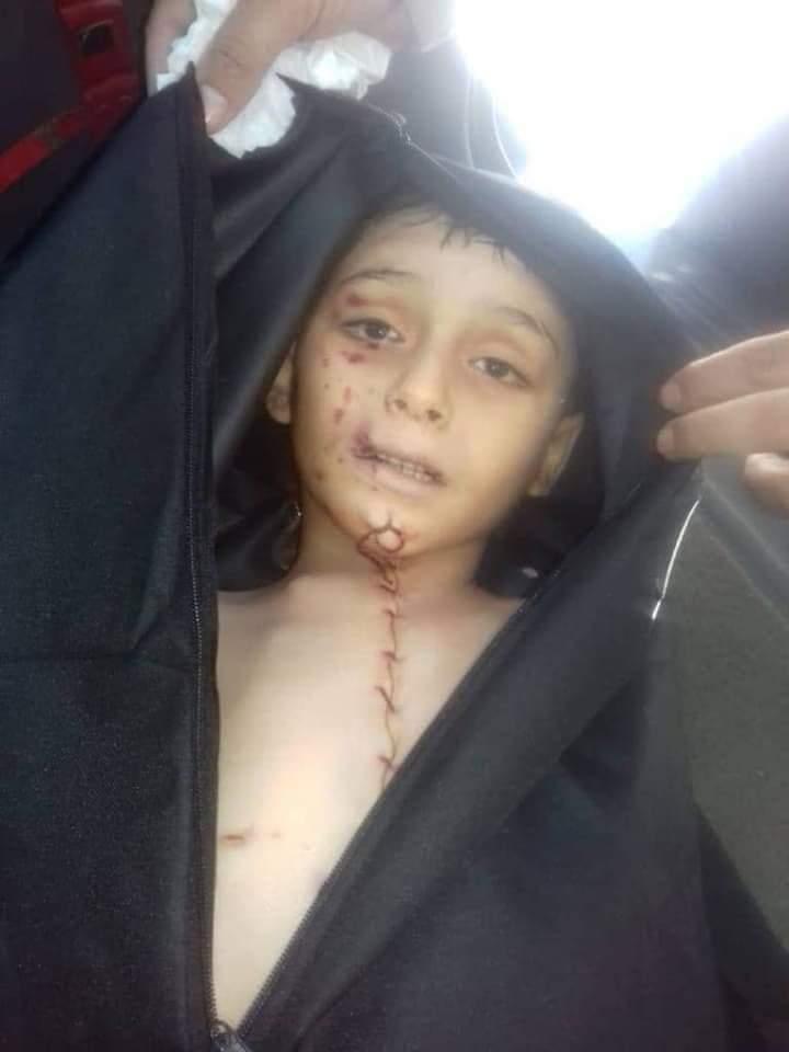 Photo of مسلسل خطف الأطفال السوريين مازال مستمر من تجار الإعضاء الأتراك