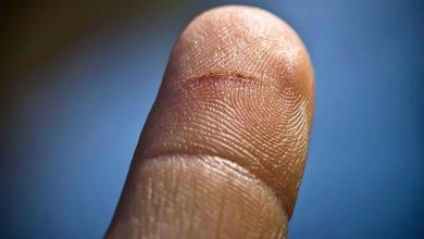 Photo of ماهو سبب الألم الحاد عندما تُجرح بالورق؟