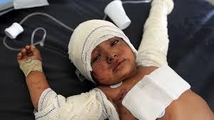 Photo of عشرون شهيداً معظمهم «نساء وأطفال» في غارة على شمالي اليمن