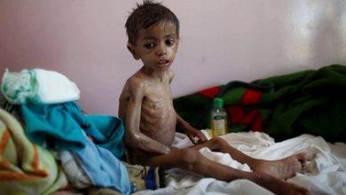 "Photo of تحذير من کارثة صحية في ""اليمن"""