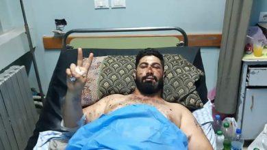 Photo of تخريج الكاتبن رائد حميدان من المشفى بعد إصابته بمعركة القريا جنوب السويداء