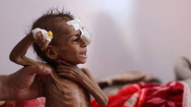 Photo of الأمم المتحدة تحذر من مجاعة جديدة تطال الملايين في اليمن