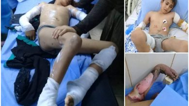 Photo of برسم وزير الكهرباء… بتر أطراف طفل بسبب إهمال «مديرية كهرباء طرطوس»