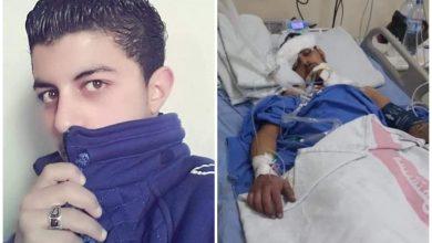 Photo of «دورية جمارك» تقتل شاباً وترميه على اوتوستراد المزة بعد كسر جمجمته!