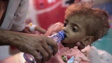 Photo of حياة الأطفال باليمن جحيم على الأرض… طفل يموت كل 10 دقائق