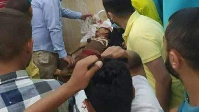 Photo of مجزرة إسرائيلية في قطاع غزة.. (9) شهداء بينهم أطفال تناثرت أشلاءهم