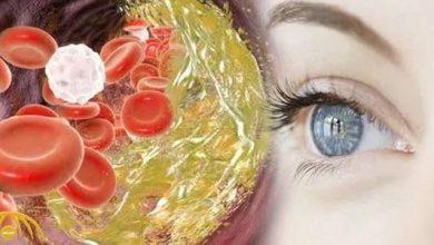 Photo of علامة في وجهك قد تحذّر من ارتفاع الكوليسترول في الدم بشكل خطير!