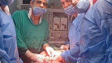 Photo of عمـل جراحي نـادر في مشفى السويداء الوطني
